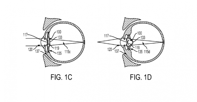 google intraocular lens